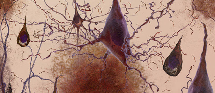 ALZHEIMER'S RESEARCH: Proteomics gives clues toward alternatives to amyloid